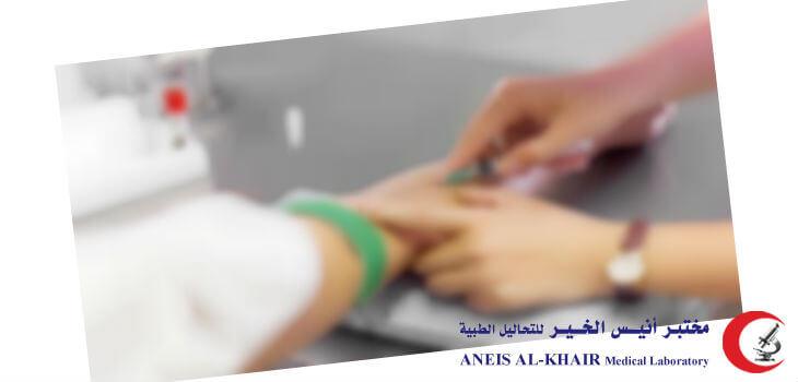 تحليل الحمل بالدم 100 آمن وموثوق مختبر أنيس الخير
