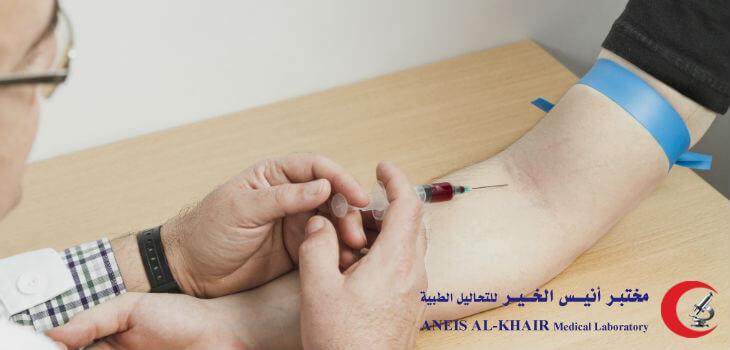 تحليل الدم الشامل