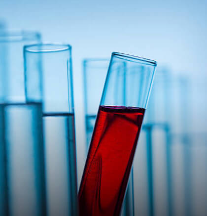 blood chemistry analysis