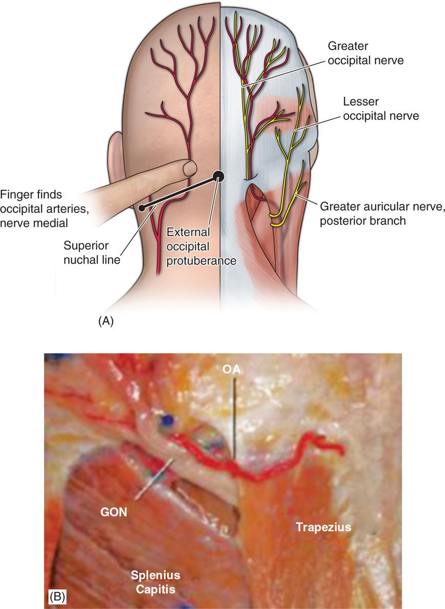 Peripheral Nerve And Occipital Stimulation