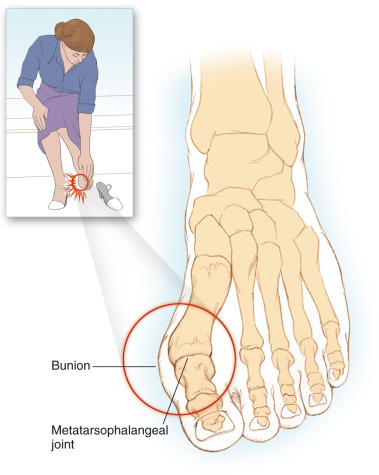 a könyökízület 1. fokozatának osteochondrosis orvosi enciklopédia térd artrózis