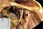 10 Inguinal Paravascular Lumbar Plexus Anesthesia (Femoral Nerve Block)