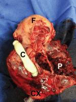 Chapter 35 – Emergency Hysterectomy