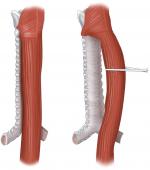 Chapter 13 – Cervical Esophagus