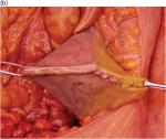 Chapter 30 – Urological Trauma