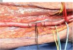 Chapter 37 – Brachial Artery Injury
