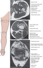 Lower extremity block anatomy