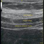 Transversus abdominis plane block (classic approach)