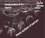 Caudal block in pediatrics