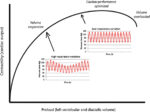 Hemodynamic Monitoring in Thoracic Surgical Patients