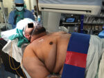Thoracic Anesthesia inthe Morbidly Obese Patient: Obstructive Sleep Apnea