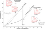 Physiology of the Lateral Position andOne-Lung Ventilation