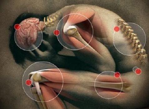 Resultado de imagen de fotos dolor esclerosis multiple