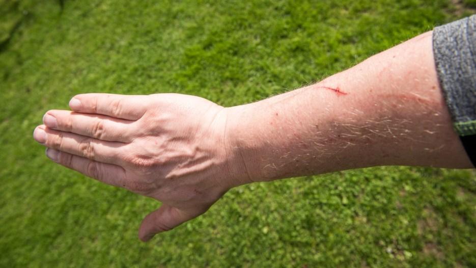 Jede Menge Kratzer überall am Körper.... Voller Einsatz für die Umwelt.