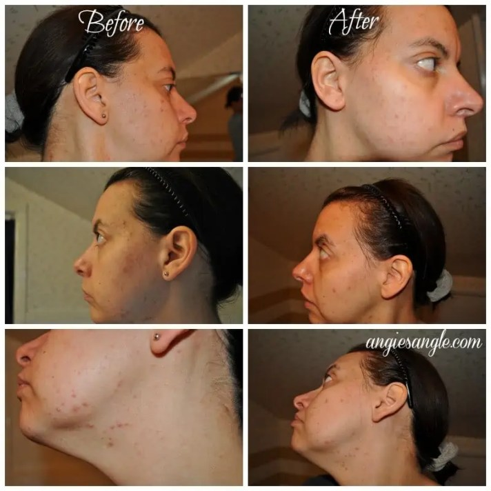 Nu Skin Clear Action Acne Medication System - Before and After All Over