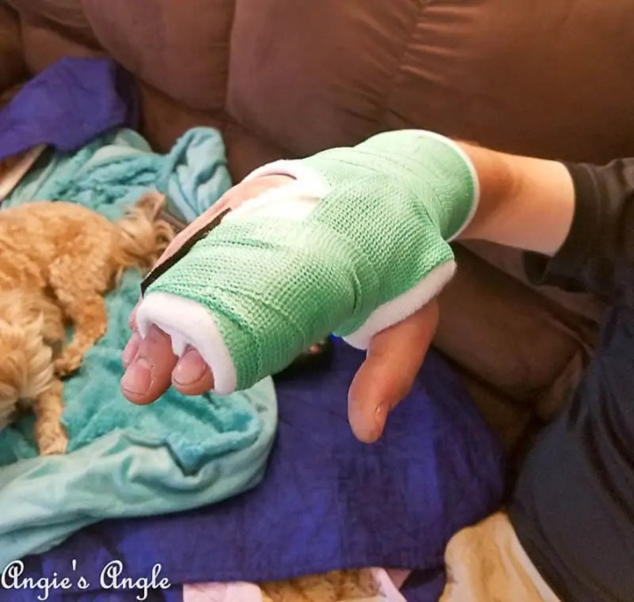 2017 Catch the Moment 365 Week 38 - Day 264 - Broken Hand Cast
