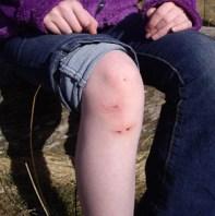 DD's knee incident