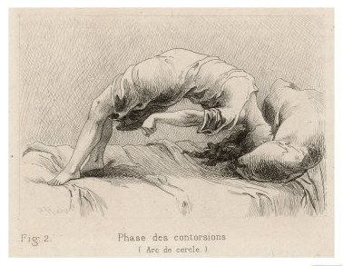 wpid-mental-patient-at-la-salpetriere-going-through-the-phase-of-contortionsp.-richer.png.png