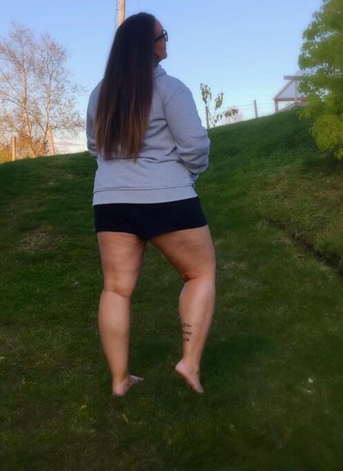 Jente i graset med cellulitter på lår