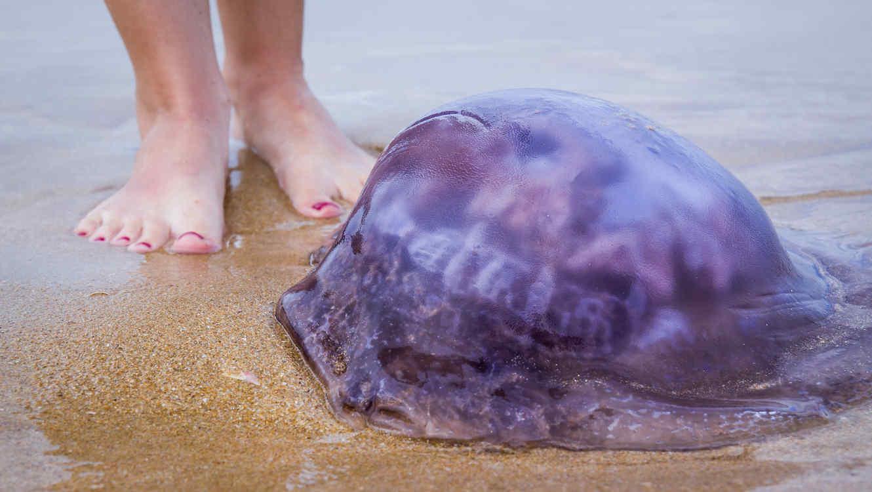 Picadura de medusa, ¿Qué podemos hacer?