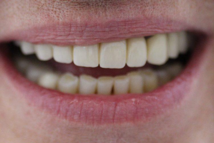 Dental Implants Smile