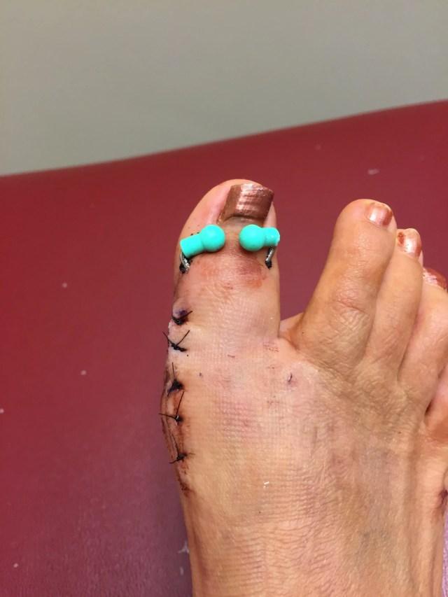 2015-8 Claire's Broken Toe 3