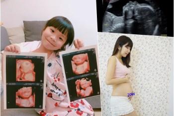 【懷孕】懷孕5~6個月 禾馨高層次超音波 ♥ 小波特全身健檢&真面目