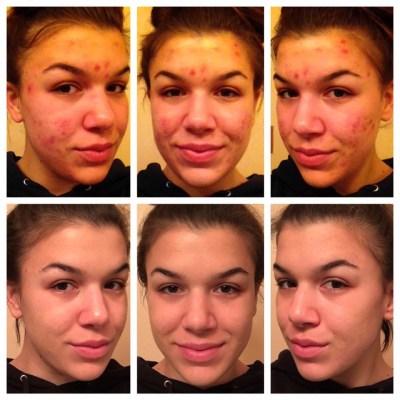 Nikki's amazing skin transformation…