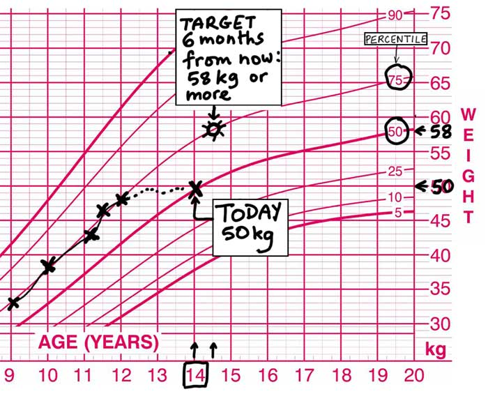 Target weight girl-anorexia-chart