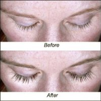 Latisse for Fuller, Thicker, Longer & Darker Eyelashes