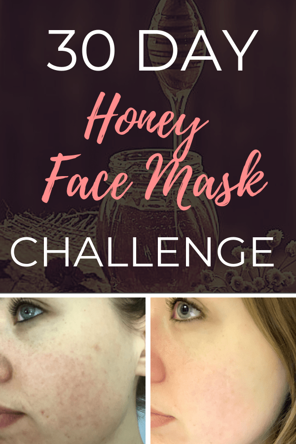 30 Day Honey Face Mask Challenge