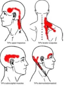 Myofascial Pain Syndrome 7