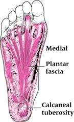 Plantar fasciitis 1