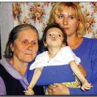 Los supervivientes de Chernobyl, 26 años después
