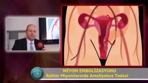 Miyomlarda Ameliyatsız Tedavi Sonuçları Miyomun ameliyatsız tedavisi miyom ameliyatı