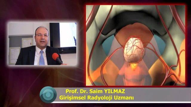 Miyomların Teşhisi ve Tedavi Yöntemleri Miyom Ameliyatsız Tedavi Rahim miyomu tedavisi