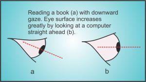 Computer Eye Strain : Antelope Mall Vision Center Optometry, Palmdale