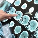 Περιοχή στον εγκέφαλο νιώθει ό,τι κακό πρόκειται να συμβεί