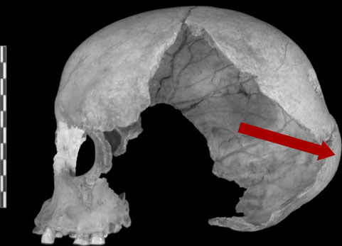 Lateral view of the Muierii 1 cranium