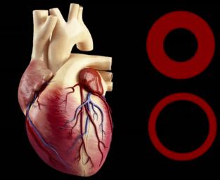 Coeur et stress