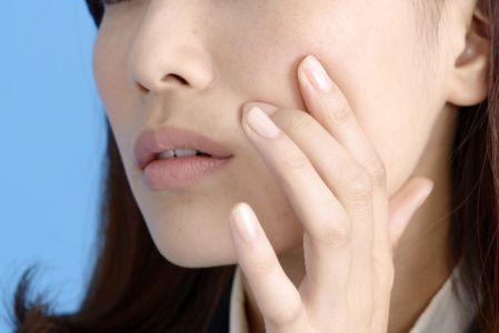 ストレスが原因の肌荒れが気になる女性の写真
