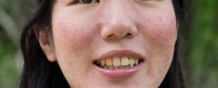 凸凹の毛穴の女性の写真
