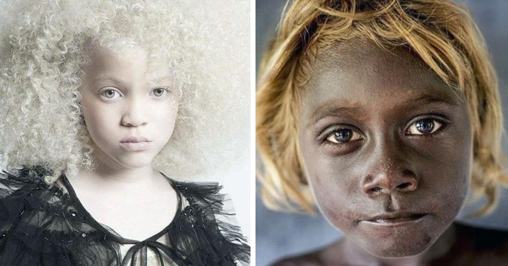20 людей, которым природа подарила необычную внешность