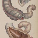 Anatomical William Home Lizars