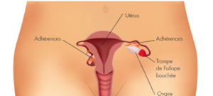 Hydrosalpinx (Trompes Bouchées) utérus