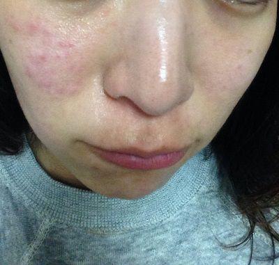 花粉症皮膚炎3