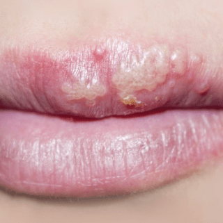 Heal a HERPES COLD SORE IN Just 2 Days