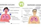 Difference Between Respiratory Acidosis and Respiratory Alkalosis