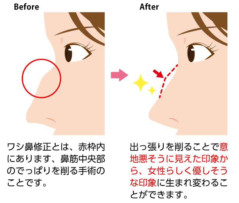 ワシ鼻修正】鷲鼻・段鼻を治してコンプレックス解消! | 美容整形なら東京中央美容外科【TCB公式】