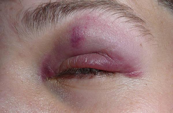 bruised - black eye